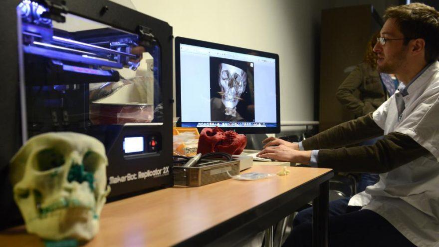 Imprimer un visage en 3D avant d'opérer : «Un confort et un gain de temps pour le chirurgien»
