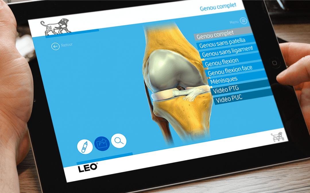 Orthoblok, un outil interactif à destination des orthopédistes.