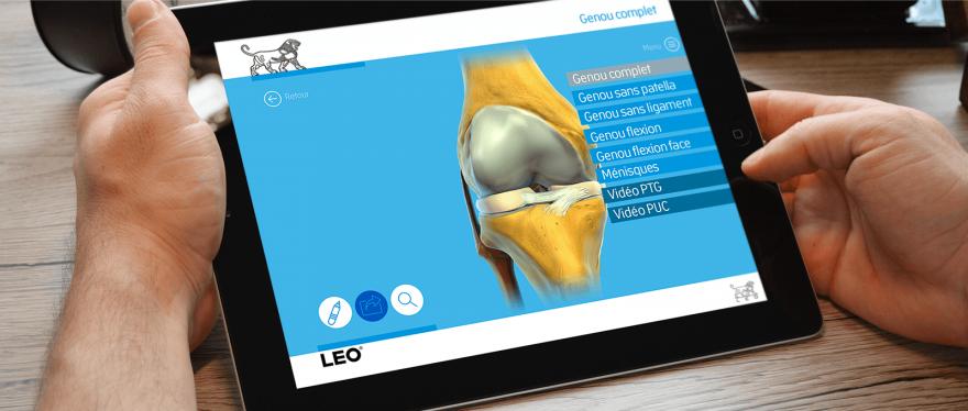 <strong>Orthoblok</strong>, un outil interactif à destination des orthopédistes.